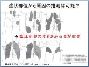 非特異的腰痛 理学療法 キャプチャ5