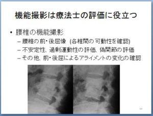 非特異的腰痛 理学療法 キャプチャ44