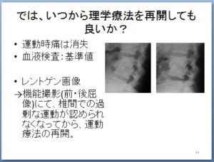 非特異的腰痛 理学療法 キャプチャ43