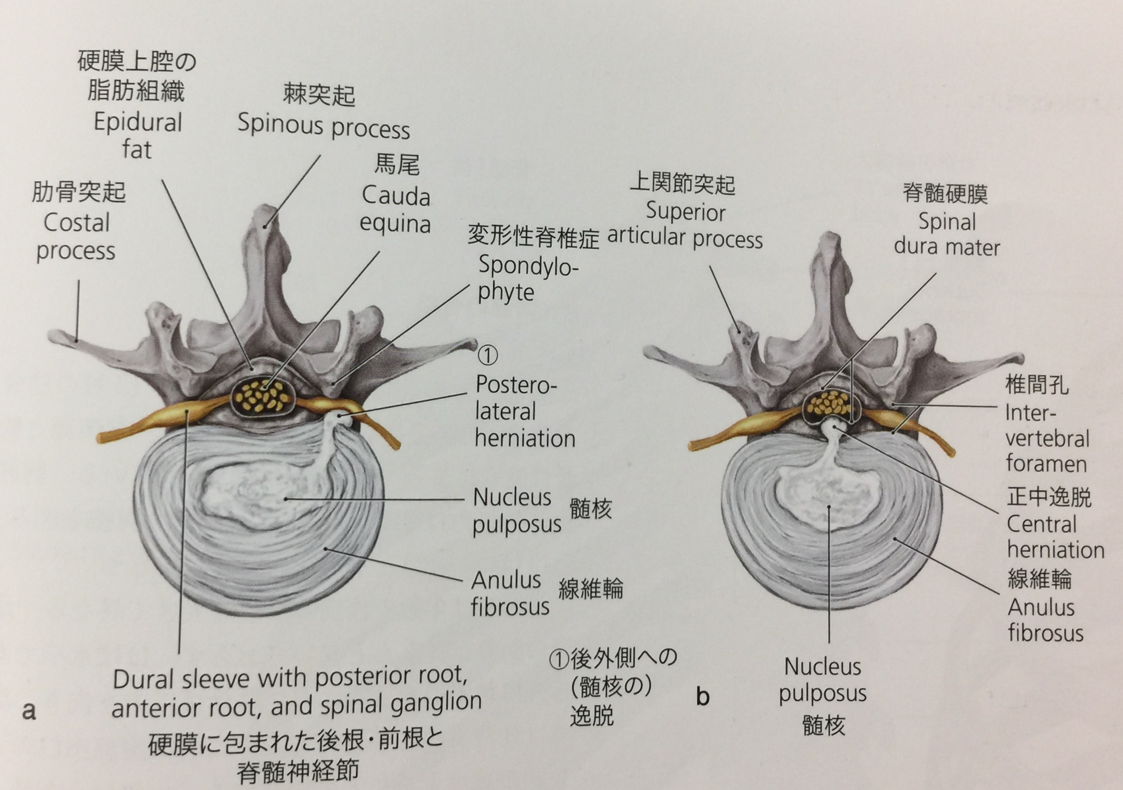 解剖学 腰椎、椎間板ヘルニア