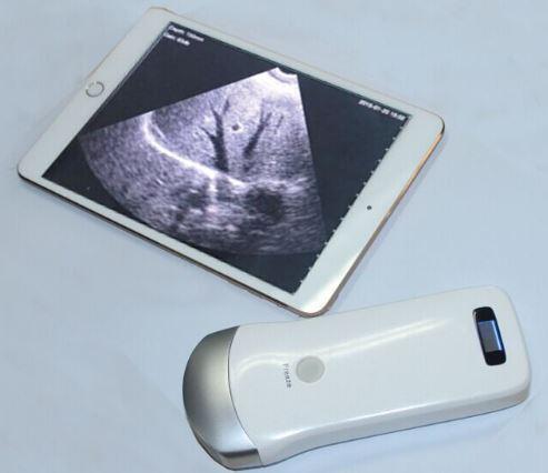 タブレット超音波検査(ultrasound-diagnosis)