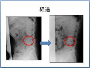 非特異的腰痛 理学療法 キャプチャ42