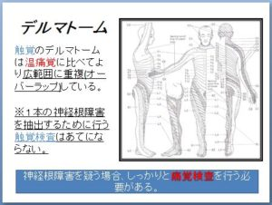 非特異的腰痛 理学療法 キャプチャ36